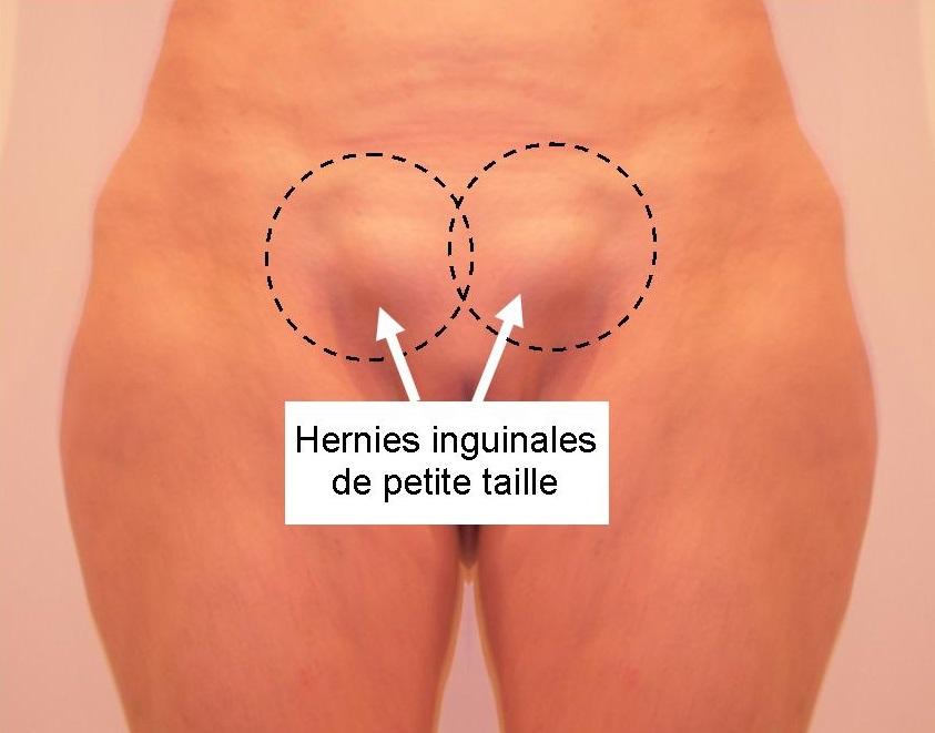 Photo hernies inguinales