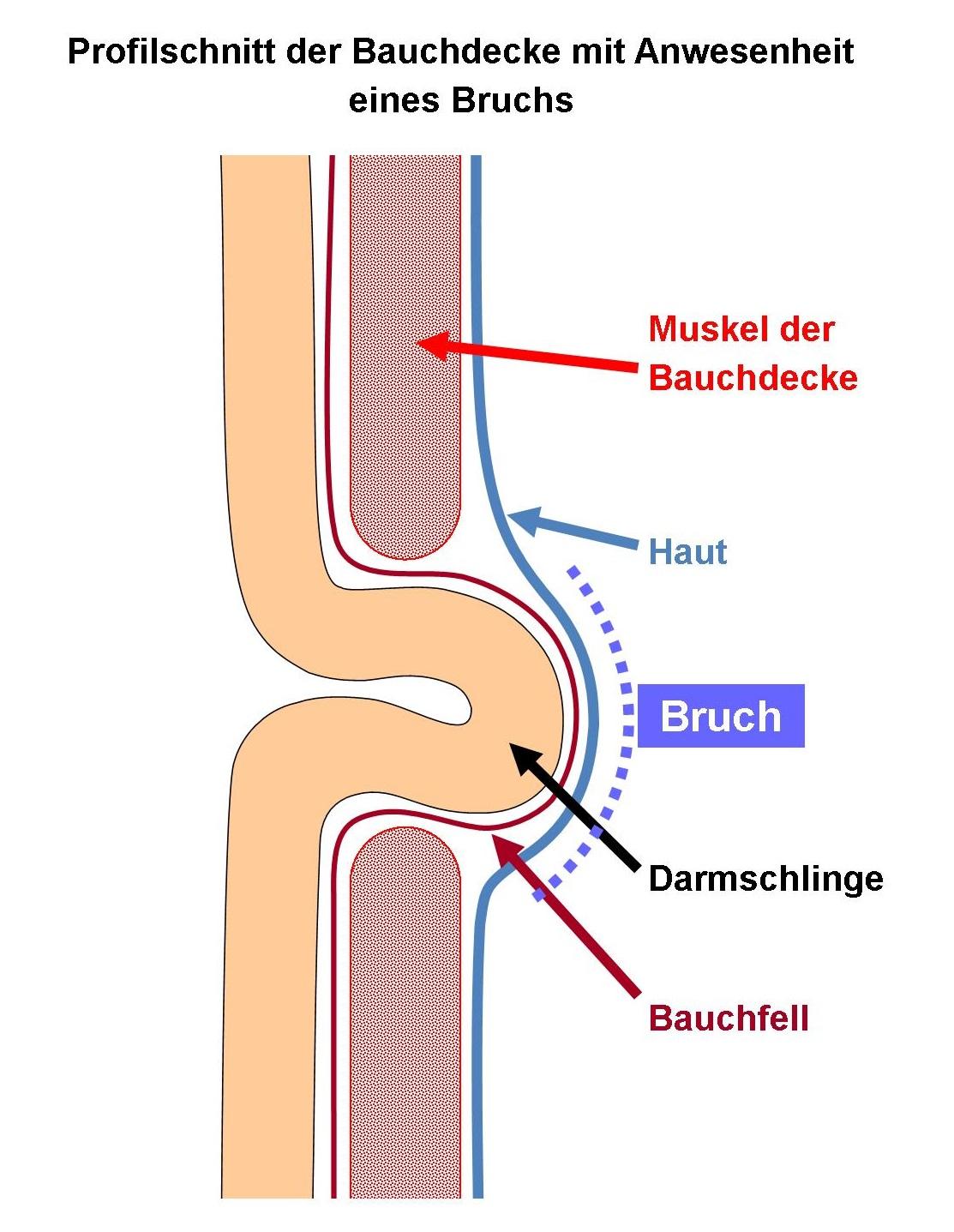 Schema Leisten- und Schenkelbrüche
