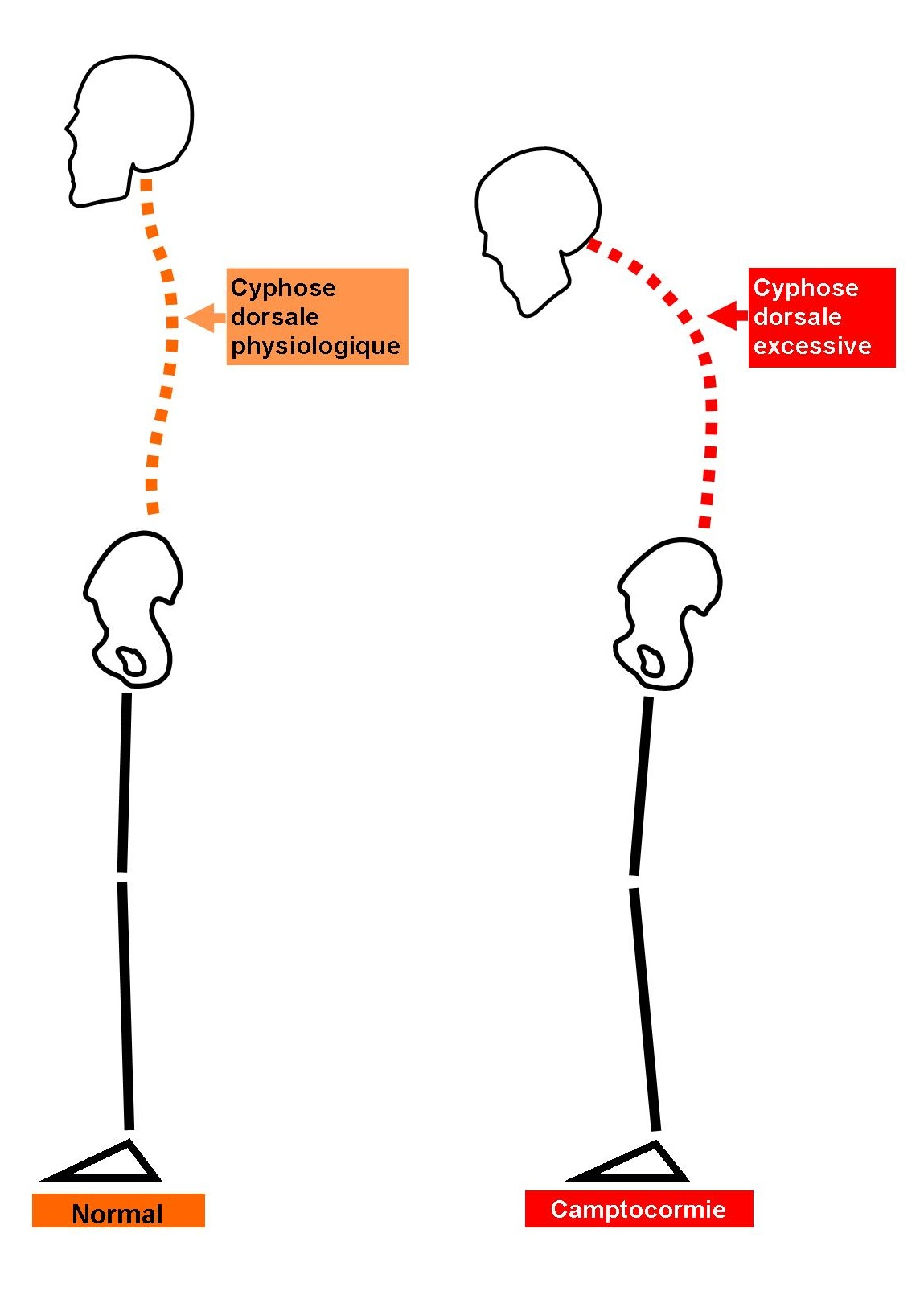 Schema Camptocormie