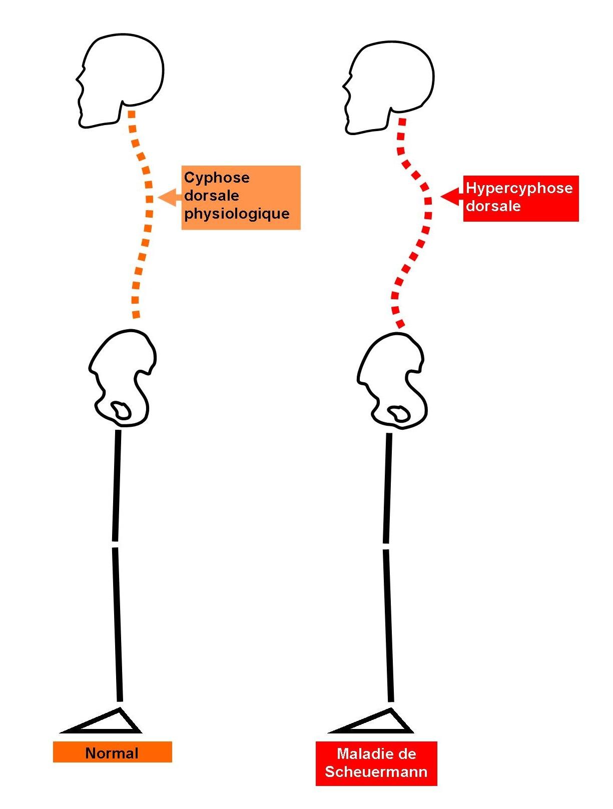 Schema maladie de Scheuermann